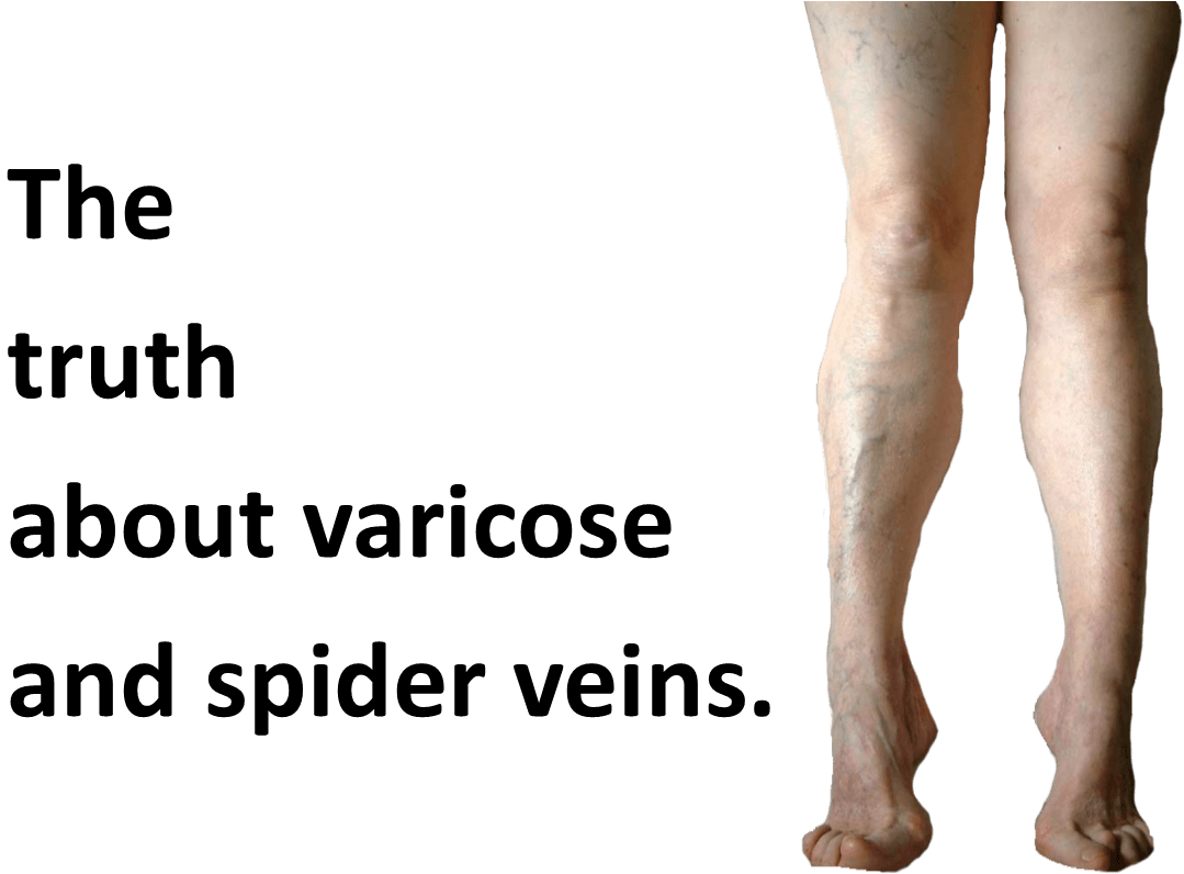c0b3f7e9e3 You're So Vein, The truth about Varicose and Spider Veins.